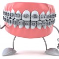 Metal Braces on Teeth :: HoosierHomemade.com
